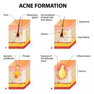 testochecker adult acne formation