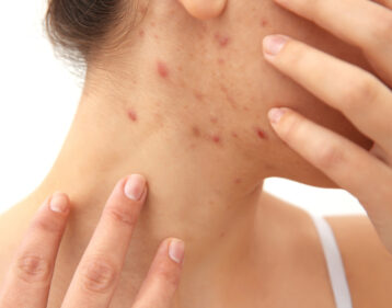 Women with adult pimples